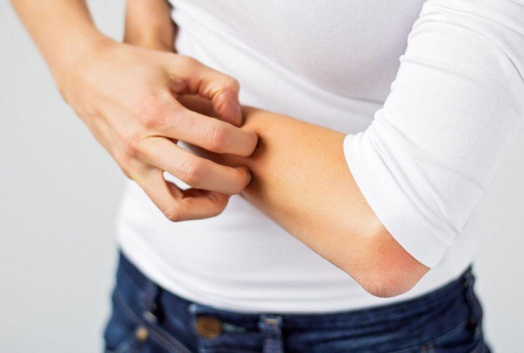 Bijuterias com níquel ou cádmo podem lhe causar alergias.